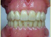 Exàmen aptitud uba mecànica dental